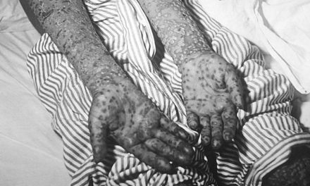 Вариола вера: Шта смо научили од велике епидемије?