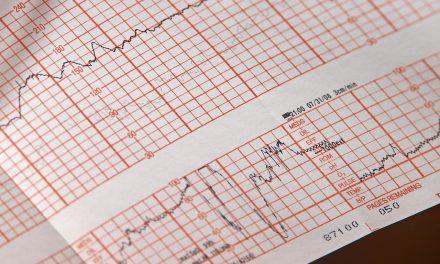 Сензор који открива срчане сметње 10 дана пре појаве симптома