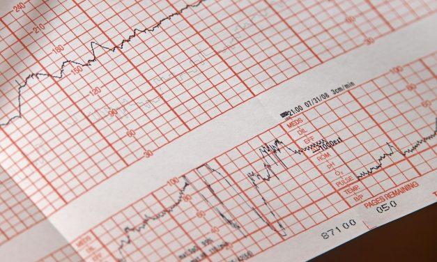 Senzor koji otkriva srčane smetnje 10 dana pre pojave simptoma