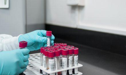 Zvanično preminulo još 11 osoba od koronavirusa u Srbiji, 287 novoobolelih