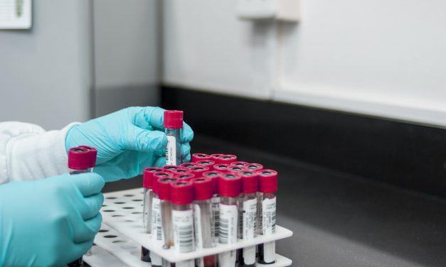 Koronavirusom zaražene još 72 osobe, preminulo još 6 pacijenata