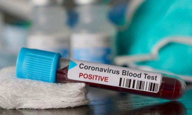 Zvanično preminule još dve osobe, 53 nova slučaja zaraze koronavirusom