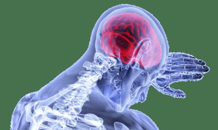 Jednostavan test koji otkriva simptome moždanog udara
